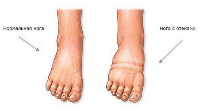 Как выглядит отек ног при сердечной недостаточности