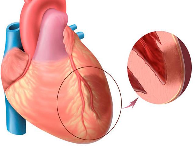 Симптомы инфаркта миокарда у мужчин