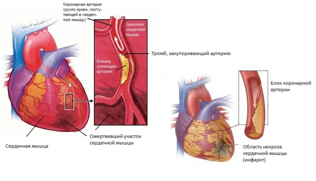 Как происходит инфаркт миокарда