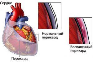 Перикардит причина болей в сердце при вдохе