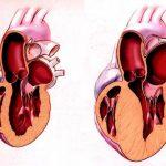 Проблемы пациента при инфаркте миокарда