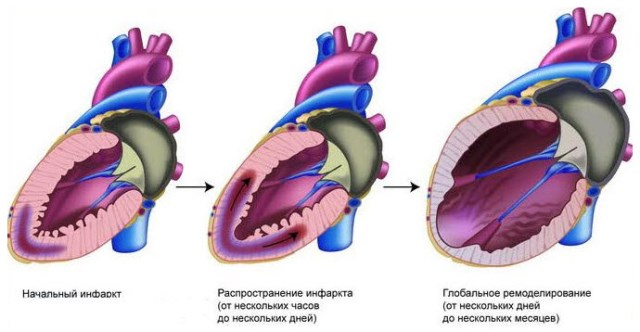 Этапы развития инфаркта миокарда