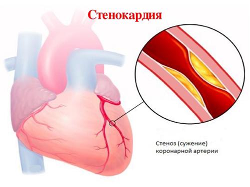 Стенокардия как причина болей в сердце, отдающих в левую руку