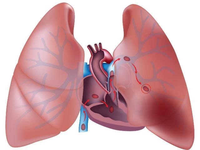 Анасарка и асцит при сердечной недостаточности