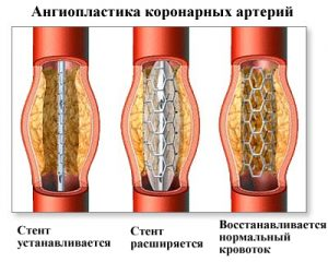 Ангиопластика при инфаркте миокарда