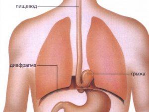Грыжа диафрагмы как причина болей, отдающих в сердце