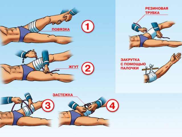 Правила наложения жгутов при отеке легких