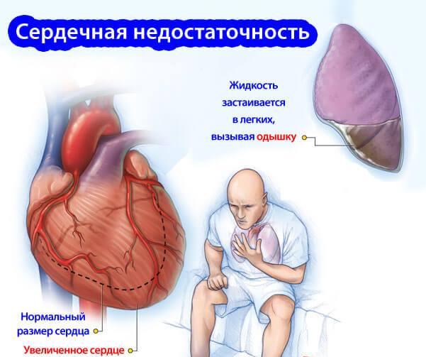 Как происходит отек легких при сердечной недостаточности