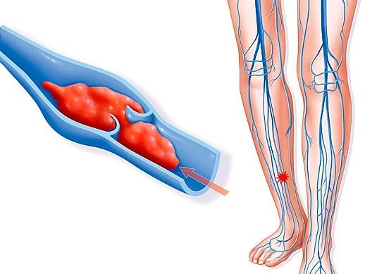 Профилактика тромбофлебита у послеоперационных больных