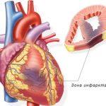 Типичная форма инфаркта миокарда