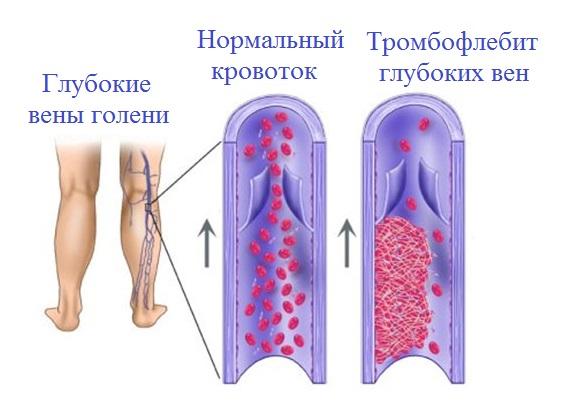 Что такое тромбофлебит