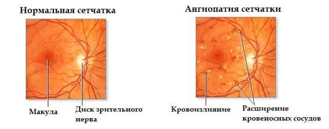Что такое ангиопатия сетчатки глаза
