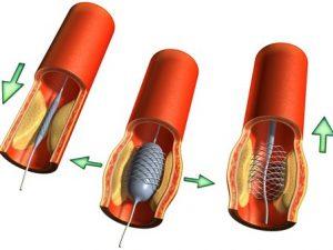 Ангиопластика при атеросклерозе сосудов