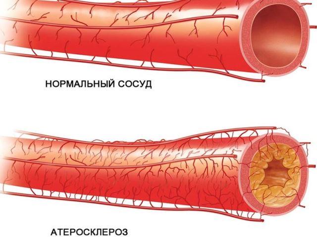 Сосуды при атеросклерозе
