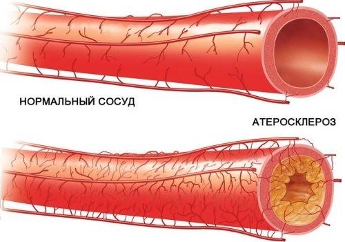 Атеросклероз - причина сужения просвета сосудов