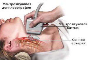 Проведение УЗИ при атеросклерозе
