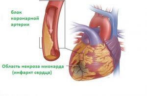 Развитие инфаркта миокарда