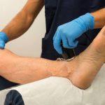 Как проверить сосуды на ногах