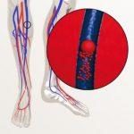 диета при атеросклерозе нижних конечностей