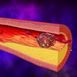 Как предотвратить образование тромбоза сосудов