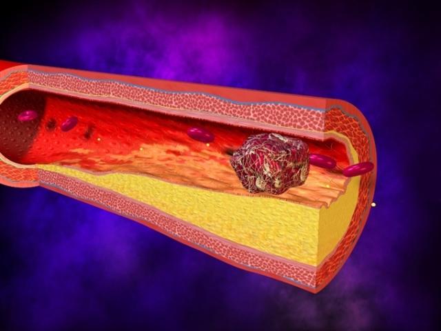 Профилактика тромбоза сосудов