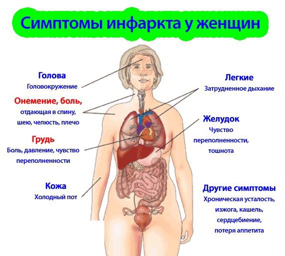 Как проявляется инфаркт миокарда у женщин