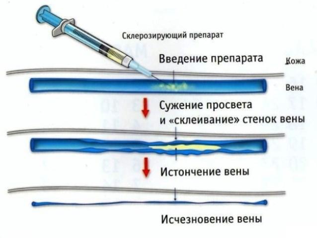 Как проводят склерозирование сосудов