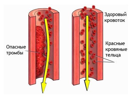 Что такое тромбоз сосудов