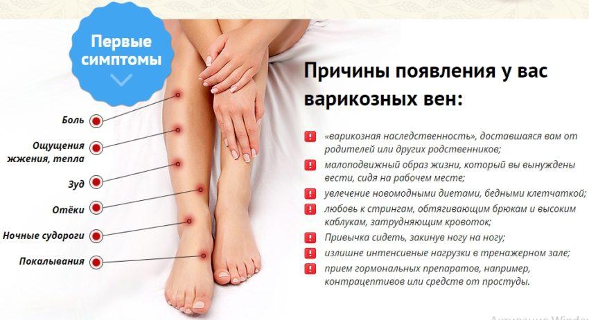 Причины возникновения варикоза