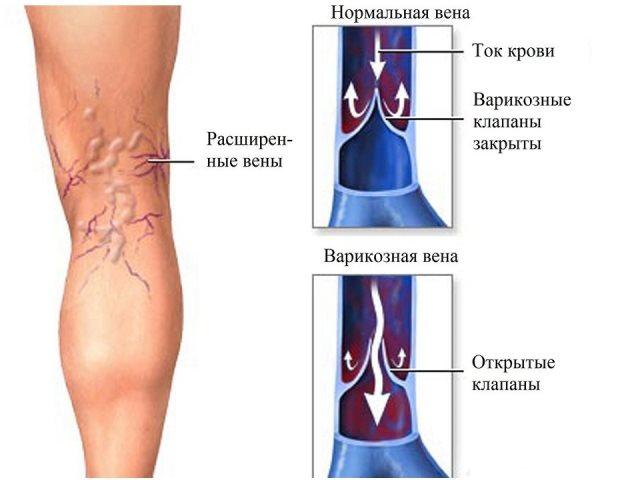 Лазерная операция на вены на ногах