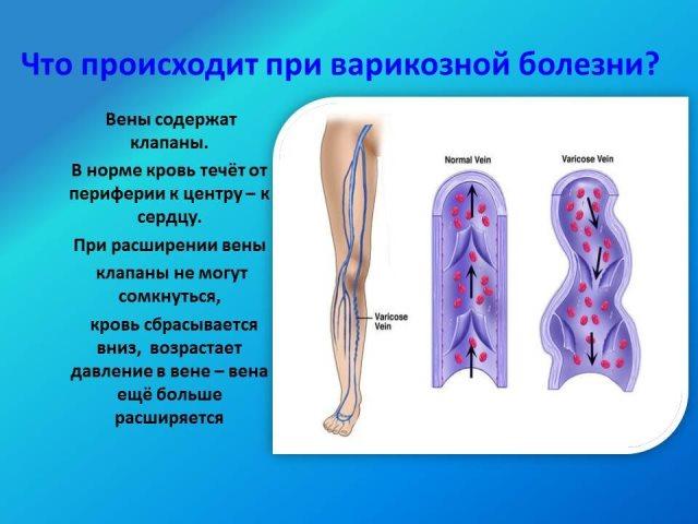 Что происходит при варикозной болезни