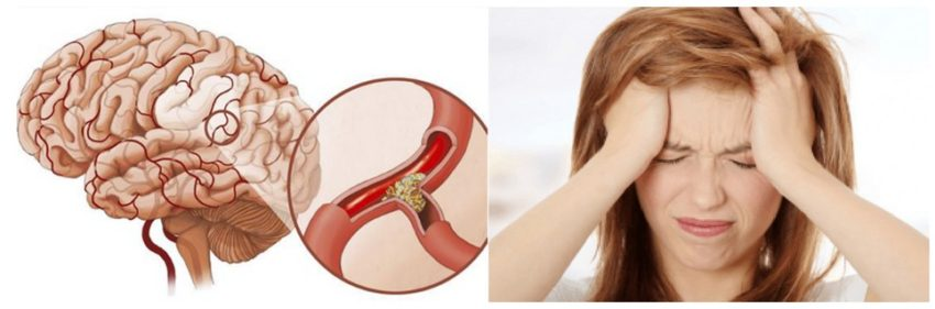 атеросклероз и головная боль
