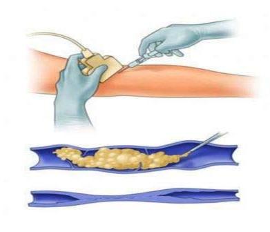 пенная склеротерапия в лечении ретикулярного варикоза