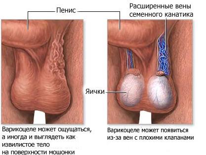 варикоцеле у мужчины