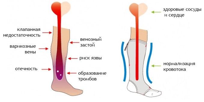 Варикоз у мужчин на ногах что делать