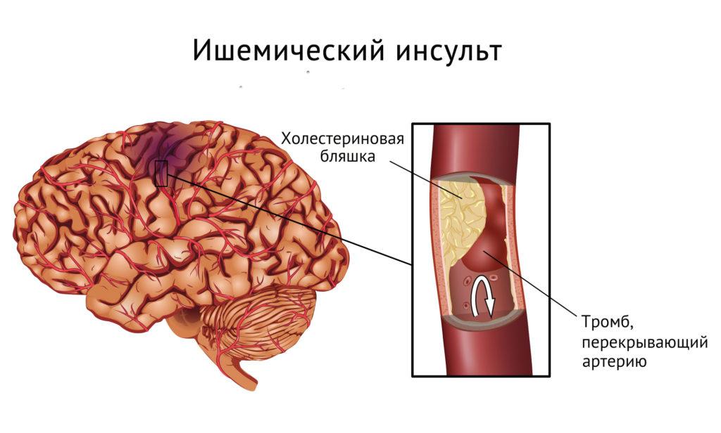 ишемический инсульт при атеросклерозе сосудов ГМ