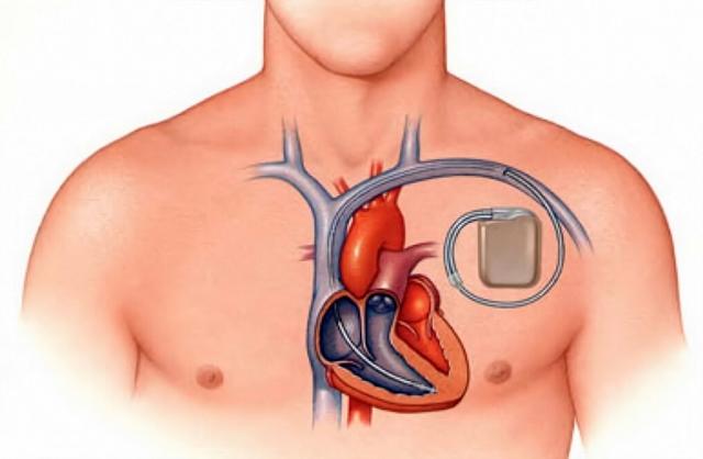 Электрокардиостимулятор при хронической сердечной недостаточности