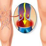 Методы лечения варикоза нижних конечностей