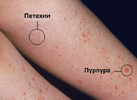 петехии и пурпура при геморрагическом васкулите