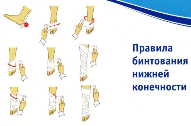Как правильно бинтовать ноги при варикозе