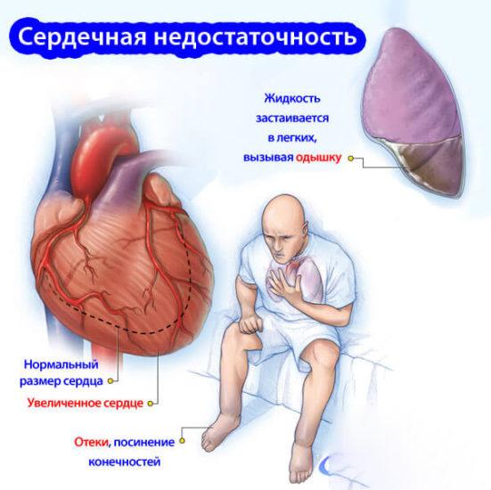 Как проявляется сердечная недостаточность