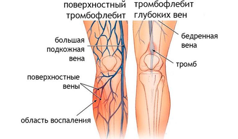 Где и как лечить тромбофлебит нижних конечностей