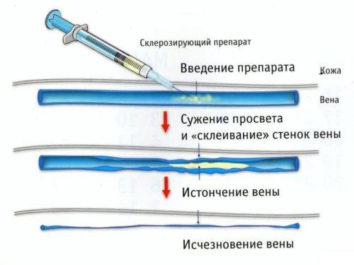 Склеротерапия при варикозном расширении вен
