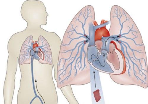 массаж может привести к тробоэмболии легочной артерии