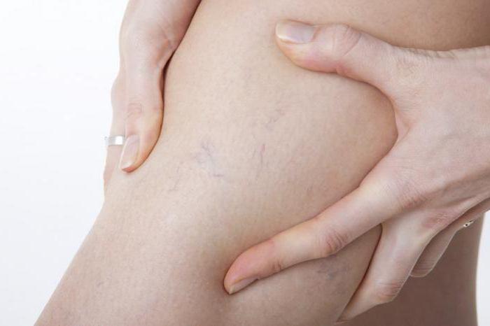 Лечение в домашних условиях тромбофлебита нижних конечностей