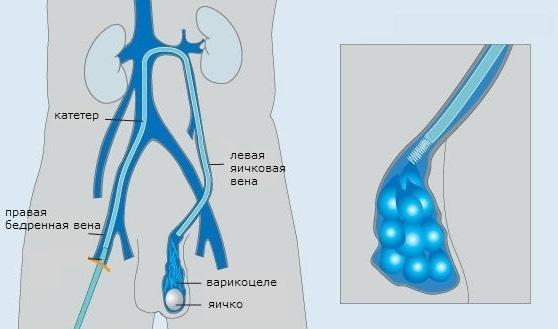 эмболизация сосудов при варикоцеле