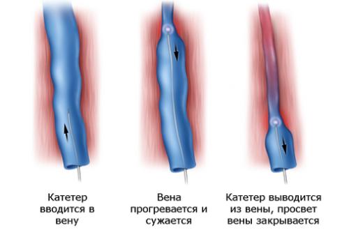 Внутривенная абляция при варикозном расширении вен