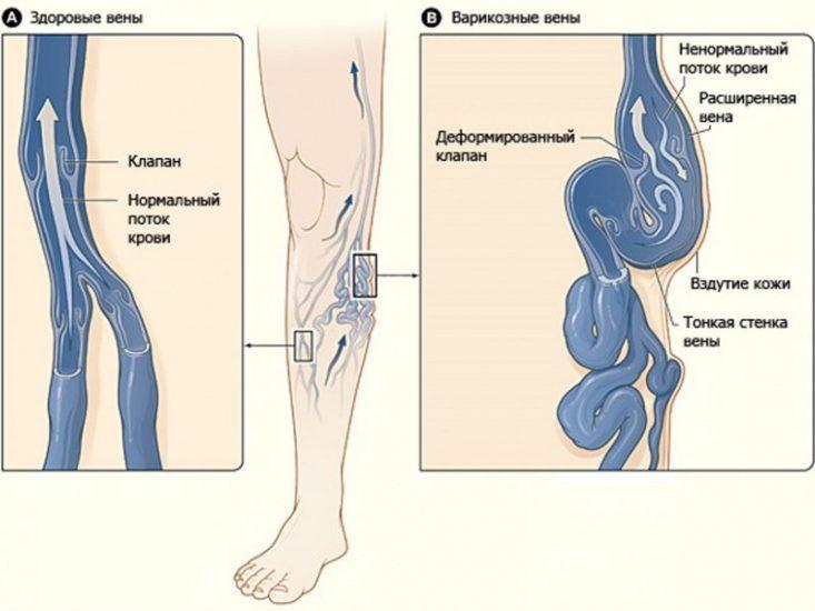 Заболевание вен нижних конечностей симптомы
