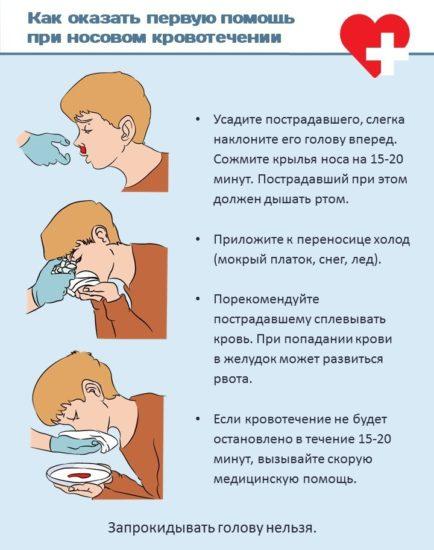 кровотечение из носа остановить в домашних условиях
