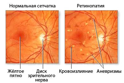 Ретинопатия на фоне артериальной гипертонии и СД